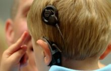 کاشت حلزون شنوایی؛ فرصتی ایدهآل برای جذب گردشگران سلامت